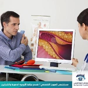 قسم جراحة الاوعية الدموية…