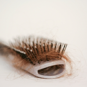 عيادة علاج تساقط الشعر…