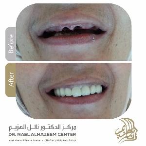 فوائد زراعة الأسنان - مركز…