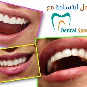 Dental Spark - خبراء تبييض الاسنان