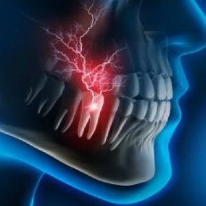 24 hours dental  emergency