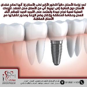 الآن زراعة الأسنان بأقساط…