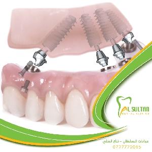 أحدث تقنيات زراعة الاسنان…