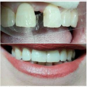 تجميل الاسنان باستخدام…