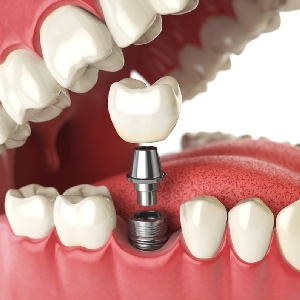 Best Immediate Dental Implants center In…