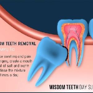 Fascio-Maxillary & Wisdom Teeth Extraction…