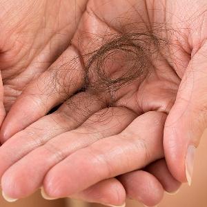 استشاري علاج تساقط الشعر…