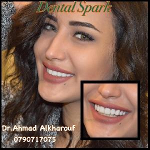 Dental Spark - الابتسامه الجميله…